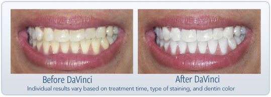 Frequently Asked Questions Davinci Teeth Whitening Systems