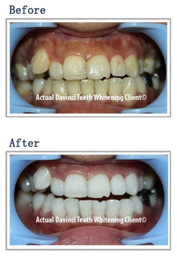 Before And After Gallery Davinci Teeth Whitening Systems Parker