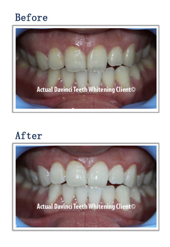 Before And After Gallery Davinci Teeth Whitening Systems